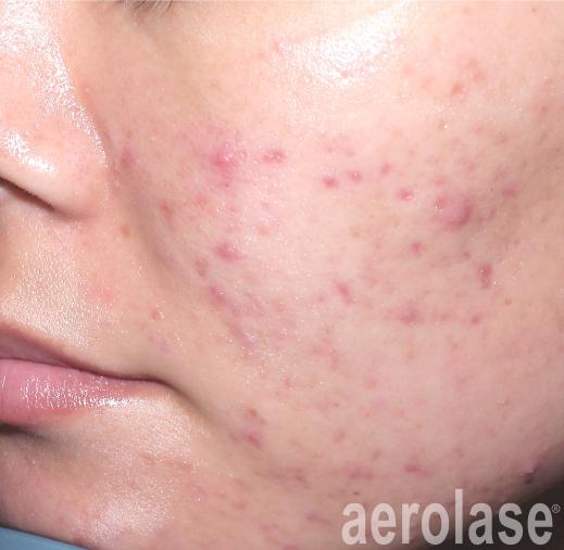 spade-acne